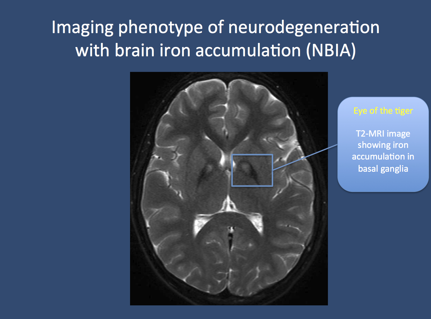 "The eye of the tiger. Pantothenate kinase-associated neurodegeneration (PKAN), formerly known as Hallervorden-Spatz disease, is usually associated with a pathognomonic finding on MRI imaging. Due to the accumulation of iron in the basal ganglia, two black spots can be seen, which is referred to as the ""eye of the tiger"" sign. PKAN is part of a group of disorders referred to as neurodegeneration with brain iron accumulation. Image from Wikimedia commons (http://commons.wikimedia.org/wiki/File:Pkan-basal-ganglia-MRI.JPG), within the framework of the Creative Commons license."
