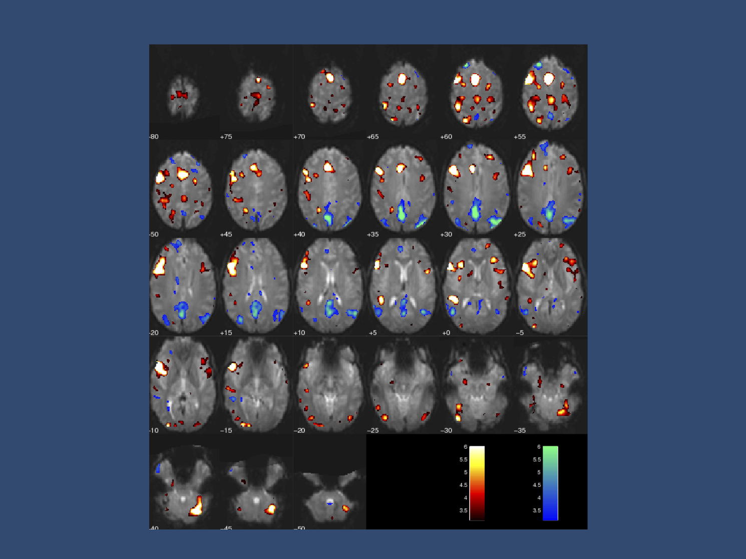 In early 2008, I managed to fail as a control in a functional MRI study performed in the Brain Research Centre in Melbourne, Australia. The colorful blobs indicate activation of brain regions during speech. It took me a minute to realize that my speech was actually on the wrong side, likely as a consequence of some alterations in my left hemisphere, as is regularly observed in people who stutter. I was supposed to be a control for an epilepsy study, but they probably took me out.