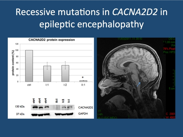 Protein expression of CACNA2D2 showing virtual absence of expression in the proband (II:1) and ~50% reduction in the parents (I:1 and I:2). The MRI of the proband showed marked cerebellar atrophy. CACNA2D2 is highly expressed in cerebellar Purkinje cells. Image modified from Pippuci and collaborators under a Creative Commons licence (http://www.plosone.org/article/info%3Adoi%2F10.1371%2Fjournal.pone.0082154)