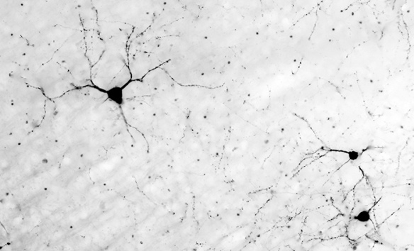 Neurons in the brain. (from https://www.flickr.com/photos/bwjones/8797663832 under a Creative Commons License)